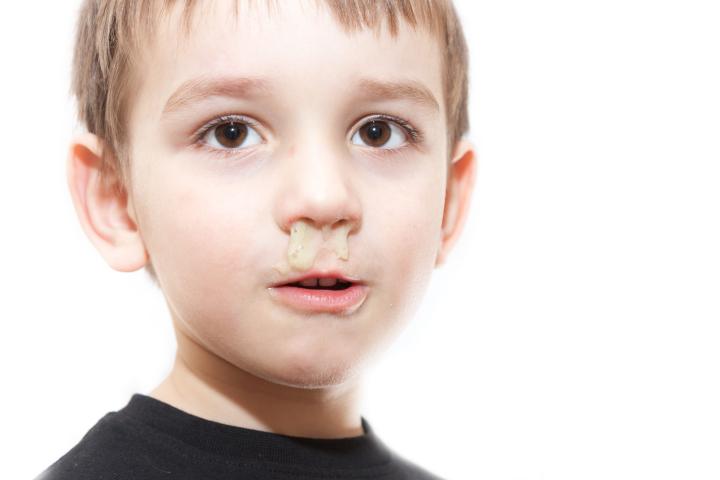 孩子的鼻涕告诉我们这么多问题……
